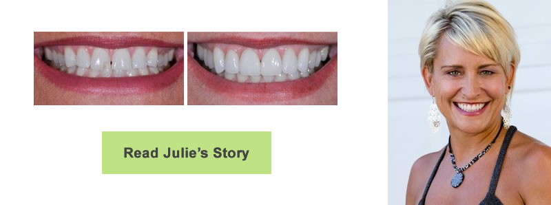 Close-up photographs of a woman's smile before and after having a chipped tooth repaired. The woman has short blonde hair.