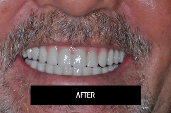 Photo of Patient After Doing Smile-In-A-Day