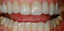 Dr. Larry Saylor Cosmetic Dentist Florida Before and After veneers
