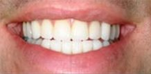 Before and After Veneers - Replace Old Veneers here with Dr. Larry Saylor in Brandon FL