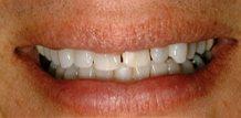 Eduardo | Before and After Veneers Tampa Fl - Brandon dentist