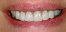Dentist Brandon Fl   Cosmetic Dentistry Before & After Filling Replacement