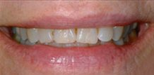 Dentist Brandon Fl   Before & After Filling Replacement Cosmetic Dentistry
