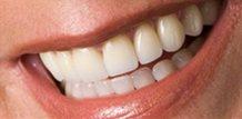 Replace fillings Tampa Fl | Dr. Larry Saylor Dentist Brandon Fl