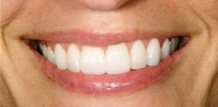 Before and After Teeth Whitening and Veneers Brandon Fl