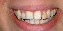 Before and After Crowns Brandon Dentist FL