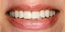 Dr. Larry Saylor | Veneers Before and After Dentist Tampa Fl