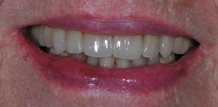 Before and After Veneers Tampa