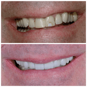 Close up photographs of a mans smile before and after having teeth whitening and cosmetic dental procedures performed.