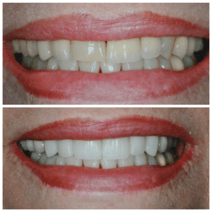 Two close up photographs of an older woman's smile before and after improving color and shape of teeth.