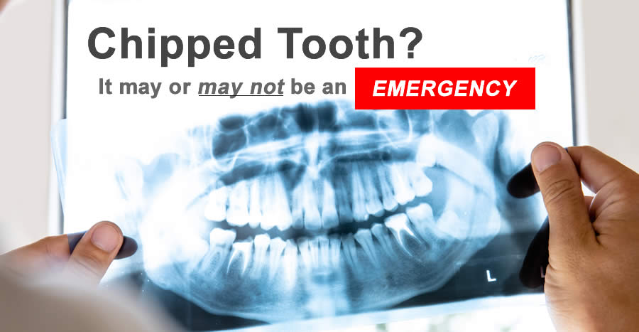 Is a chipped tooth an emergency?