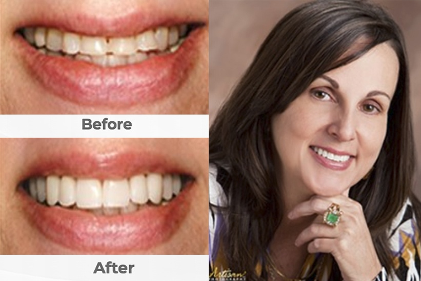 Before/After photo of Dental Veneers