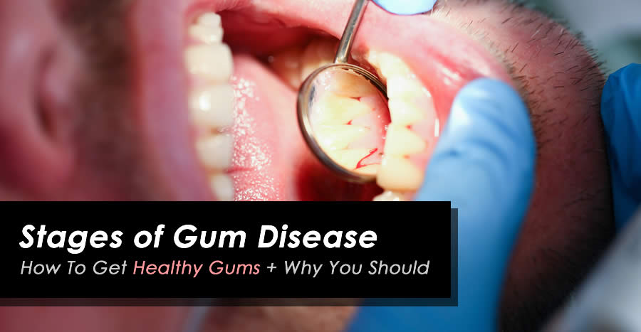 How To Get Healthy Gums And Avoid Gum Disease