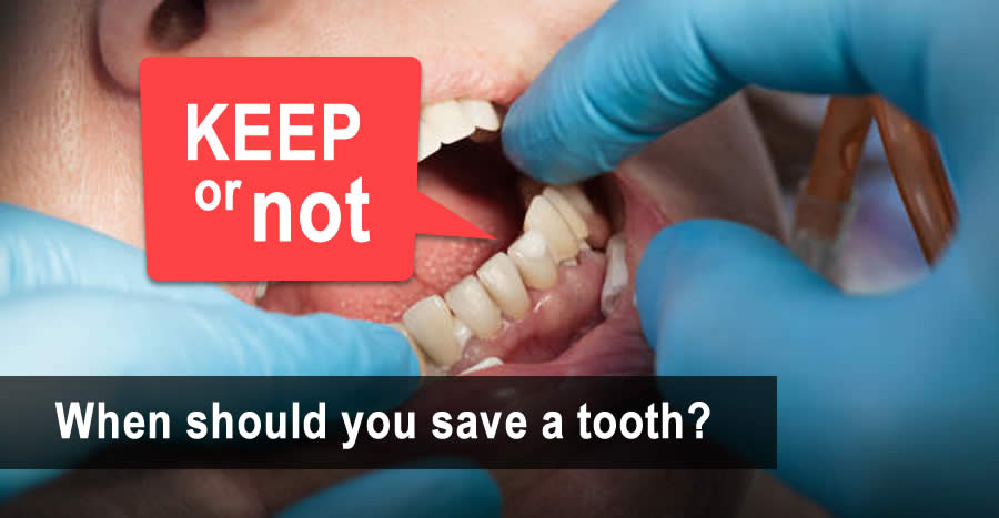 Tooth Replacement: Should I Save this tooth?