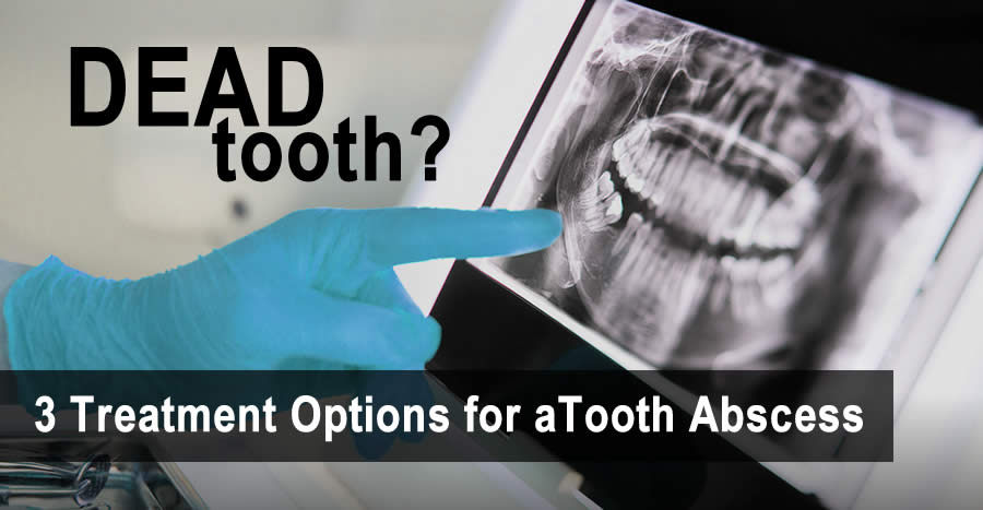 Dead Tooth? Options for Treating a Tooth Abscess